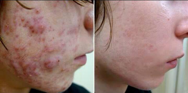 acne03