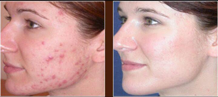acne04