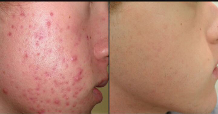 acne05